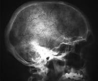 Raggi x della testa Fotografia Stock