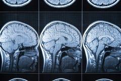 Raggi x della testa e del cervello, RMI fotografia stock