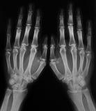 Raggi X delle mani Fotografie Stock Libere da Diritti