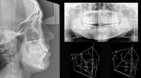 Raggi X dentali fotografia stock