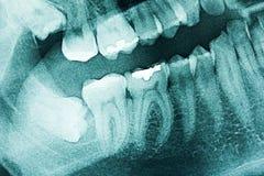 Raggi X dentali panoramici Immagine Stock Libera da Diritti