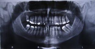 Raggi x dentari panoramici Immagini Stock