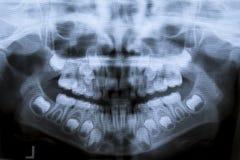 Raggi x dentari panoramici di un bambino di otto anni con il problema di non allentare i suoi denti da latte - denti da latte per Fotografia Stock