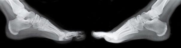 Raggi X destri e sinistri del piede Fotografia Stock