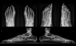 Raggi X di entrambi i piedi in tre proiezioni fotografie stock