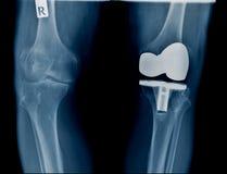Raggi x di qualità di altezza con la sostituzione del giunto di ginocchio immagini stock libere da diritti