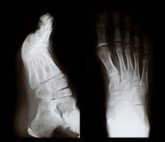 Raggi X di un piede Fotografia Stock