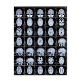 Raggi x isolati della testa di un bambino Formazione immagine a risonanza magnetica Immagine dei raggi X del cervello Giorno del  fotografie stock