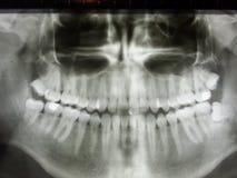 Raggi x panoramici incastrati dei denti di wizdom Fotografie Stock Libere da Diritti