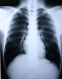 Raggi X/polmone immagini stock