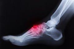 Raggi x rotti della caviglia del piede destro Fotografie Stock Libere da Diritti