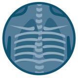 Raggi x umani dei polmoni Fotografia Stock Libera da Diritti