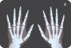 Raggi X royalty illustrazione gratis