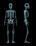 Raggi x completi di scheletro maschii del corpo Immagini Stock Libere da Diritti