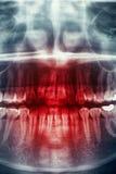 Raggi X, cranio di orrore Fotografie Stock Libere da Diritti