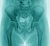 Raggi x del bacino del bambino Fotografia Stock