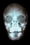 Raggi X del cranio Fotografie Stock