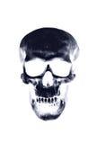 Raggi x del cranio Fotografie Stock Libere da Diritti
