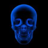 Raggi x del cranio/testa umani Fotografie Stock