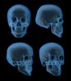 Raggi x del cranio, viste Immagini Stock Libere da Diritti