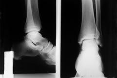 Raggi X del piede Fotografia Stock