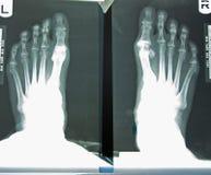 Raggi X del piede della donna Fotografie Stock