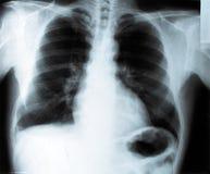 Raggi X del torace Fotografia Stock