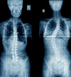 Raggi x dell'essere umano di scoliosi Fotografia Stock