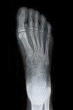 Raggi X della parte superiore del piede destro Fotografie Stock Libere da Diritti