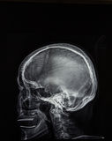 Raggi X della testa Fotografie Stock Libere da Diritti