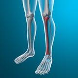 Raggi x delle gambe umane, osso della tibia Immagine Stock