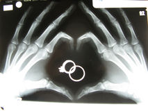 Raggi x delle mani nella forma del cuore Fotografia Stock