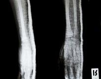 Raggi X delle mani umane Fotografie Stock