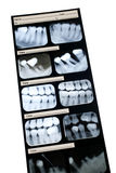 Raggi X dentali Fotografia Stock Libera da Diritti