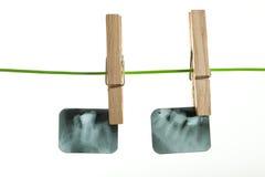 Raggi x dentari Fotografia Stock Libera da Diritti