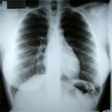 Raggi X femminili del torax Immagini Stock