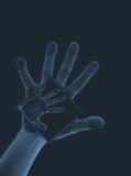 Raggi X II della mano Fotografie Stock Libere da Diritti