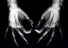 Raggi X normali di entrambe le mani Fotografie Stock