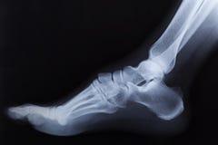 Raggi x rotti della caviglia del piede destro Immagini Stock Libere da Diritti