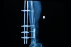 Raggi x umani che mostrano frattura di giusta gamba Fotografia Stock Libera da Diritti