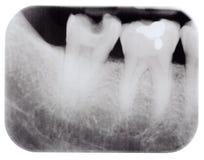 Raggio X dei molari fotografie stock