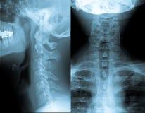Raggio del collo X Fotografie Stock