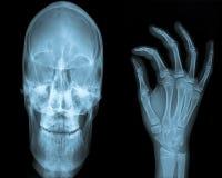 Raggio del cranio & della mano X Fotografia Stock