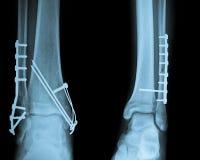 Raggio della caviglia X con Osteosynthesis Fotografie Stock Libere da Diritti