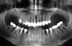 raggio dentale x Immagine Stock