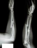 Raggio di frattura & osso ulnare Fotografia Stock