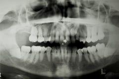 Raggio di X dentale Fotografie Stock Libere da Diritti
