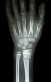 Raggio distale di frattura (l'osso dell'avambraccio) Fotografia Stock Libera da Diritti
