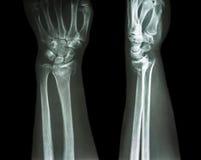 Raggio distale di frattura (la frattura di Colles) Fotografie Stock Libere da Diritti