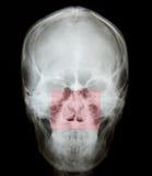 Raggio x della frattura nasale Fotografie Stock
